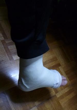 下駄履き骨折 Fracture01