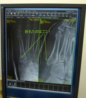 下駄履き骨折 第5中足骨基部骨折 Fracture02
