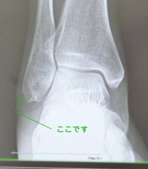 P1150232-x_rays